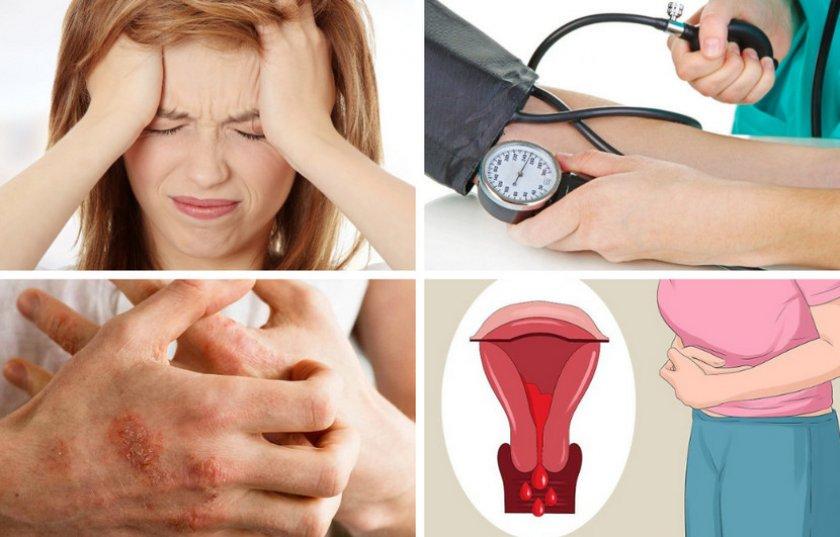 Лечение калиной болезней