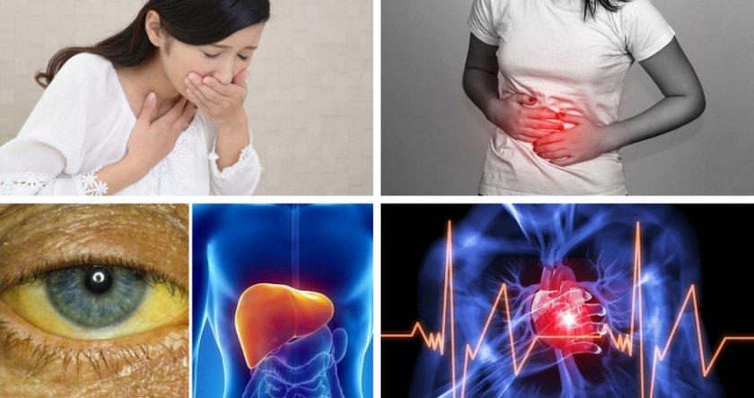Симптомы отравления свинушками