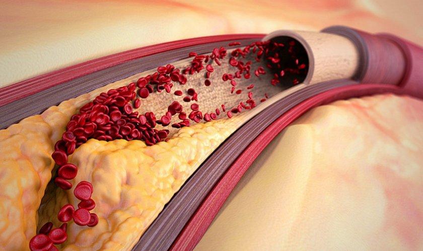 Атеросклероз сосудов