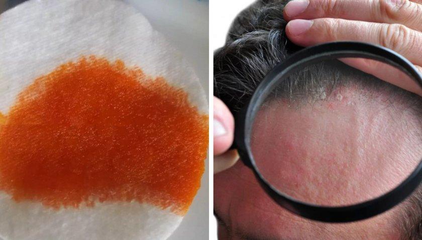 Наружное применение облепихового масла
