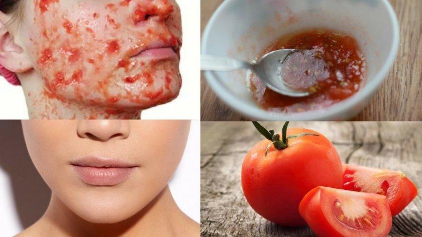 Маски для лица из помидор