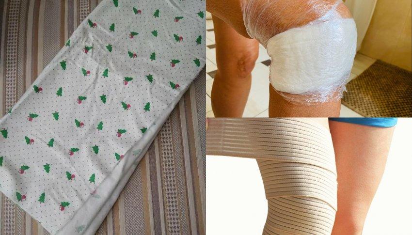 Компресс при переломе ноги