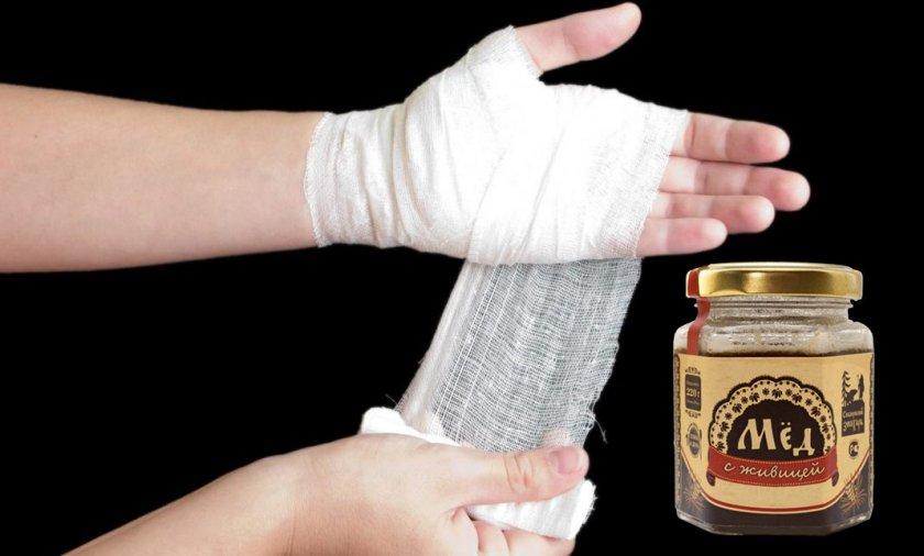 Лечение кожных повреждений