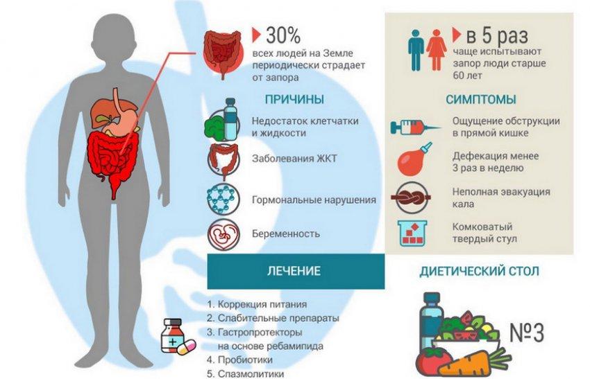 Причины и лечение запора