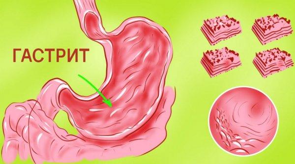 меню для похудения при грудном вскармливании