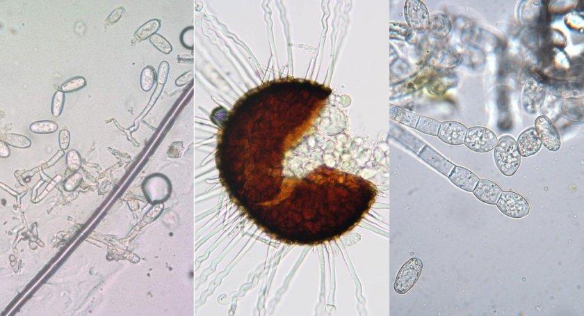 1. Oidium erysiphoides Fr. 2. Erysiphe communis (Wallr) Fr. 3. Sphaerotheca fuliginea Poll f. cucurbitae Jacz
