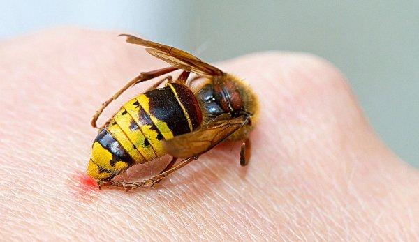 Оказываем первую помощь при укусе осы