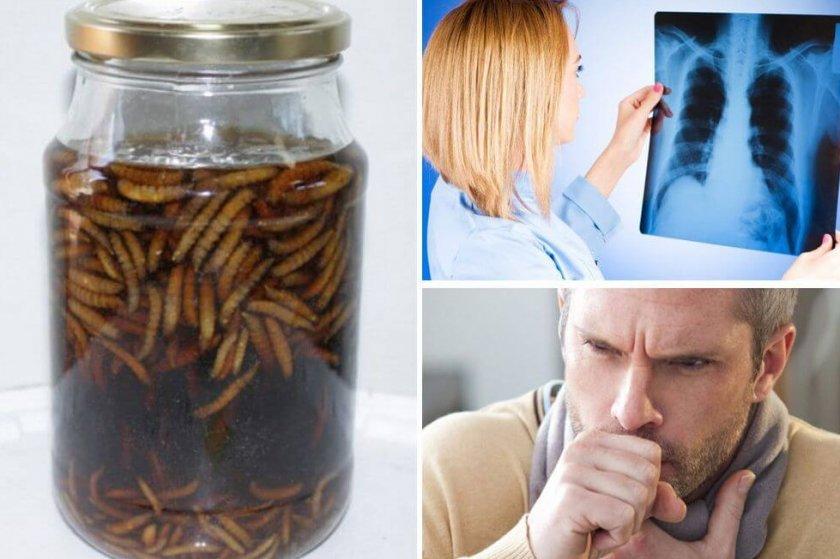 Восковая моль при туберкулёзе