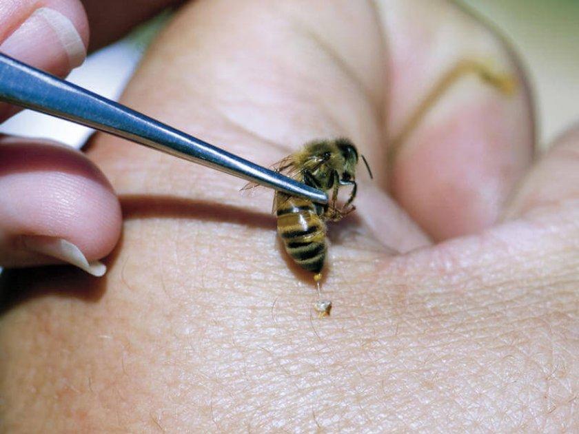 Способы введения пчелиного яда в организм