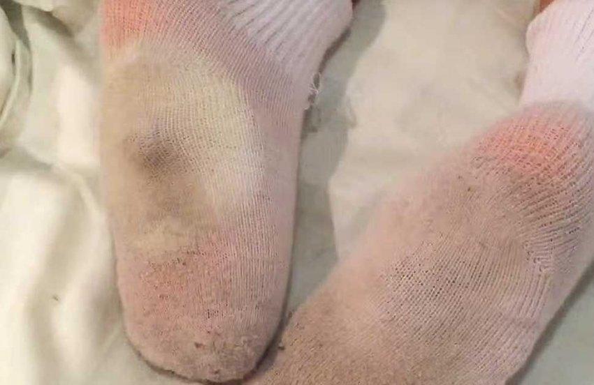 Можно ли ребёнку при простуде класть ночью лук в носки?