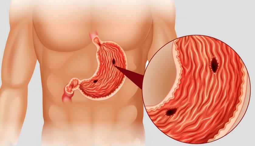 Язвенные рубцы в желудке