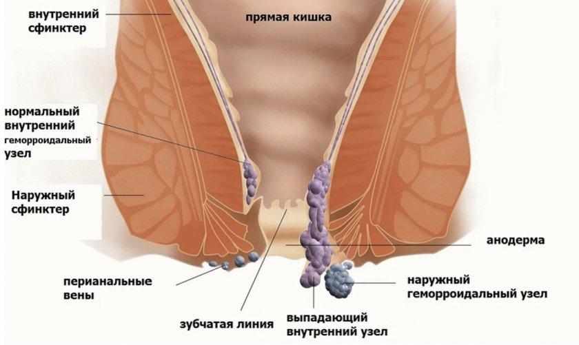 Что такое гемморой