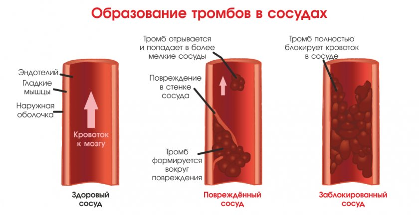 Как образуется тромб