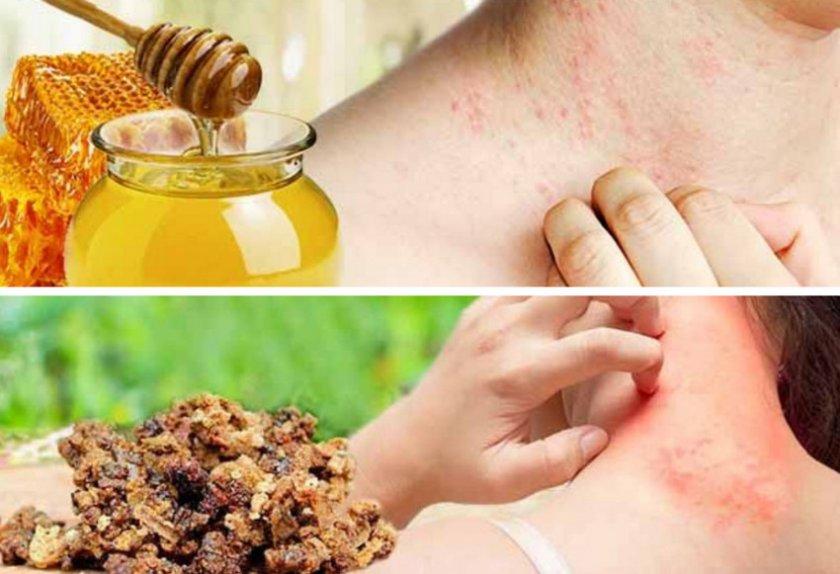 Аллергия на продукты пчеловодства
