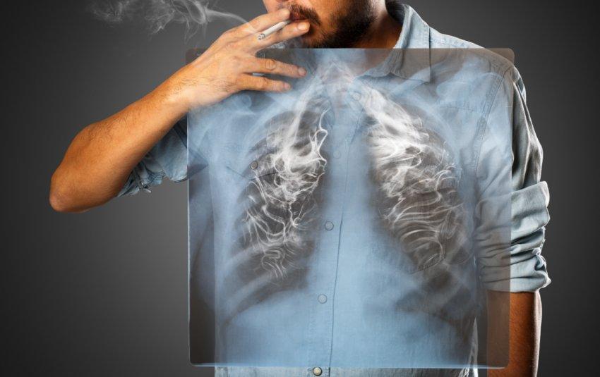 Как очистить лёгкие курильщика с помощью имбиря и куркумы