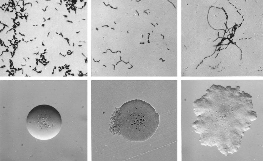 Бактерия Erysipelothrix insidiosa