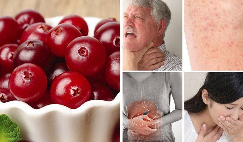 Пищевая аллергия на клюкву