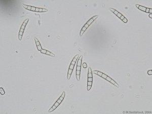Fusarium oxysporum